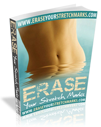 Erase Your Stretch Marks